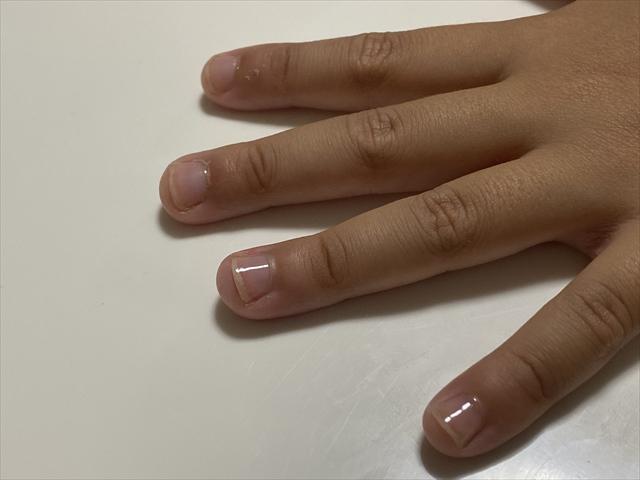 つめまもりを塗った爪